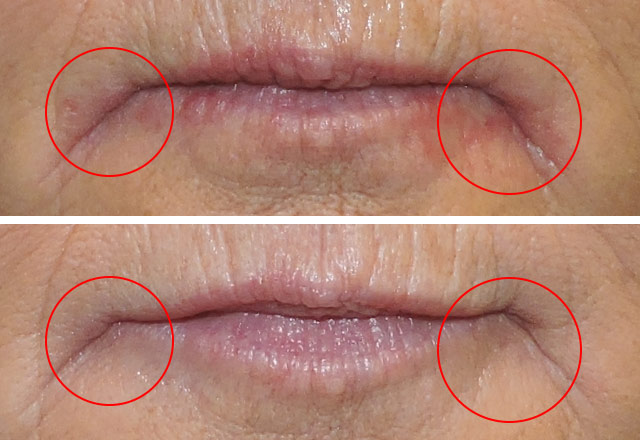 Dermatitis treatment lip 2