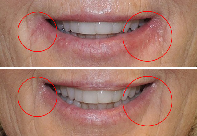 Dermatitis treatment lip