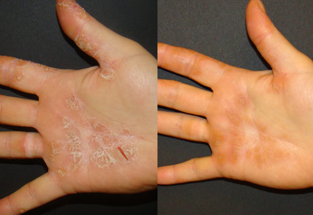 Before and after results – hand 2