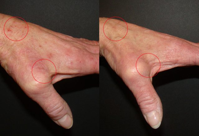 Before and after results – hand 7
