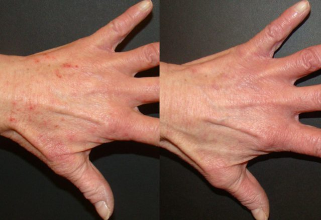 Before and after results – hand 8