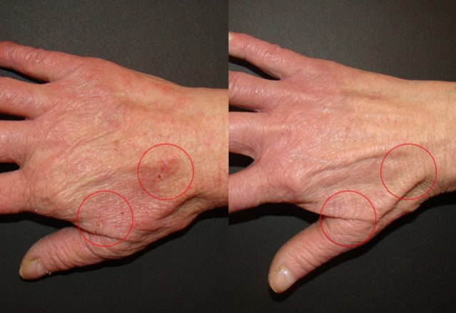 Before and after results – hand 9