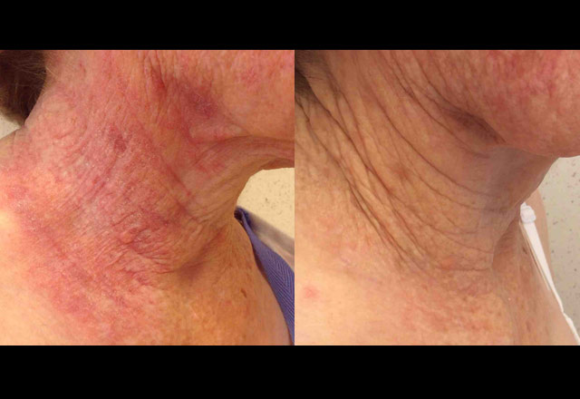 Before and after results – neck