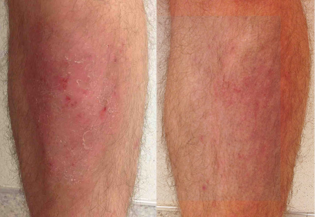 Psoriasis treatment after a month