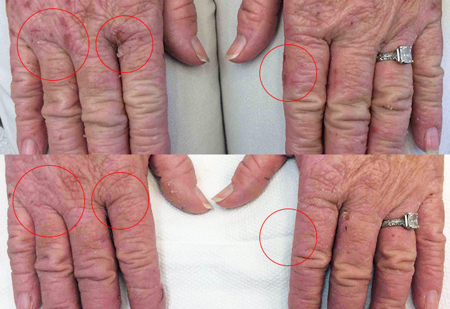 Before and after results – hand 10