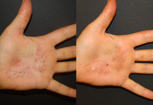 Before and after results – hand
