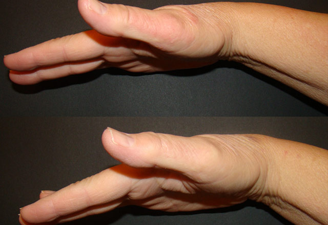 Before and after results – hand 3