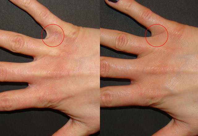 Before and after results – hand 4