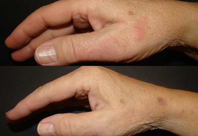 Before and after results – hand 5