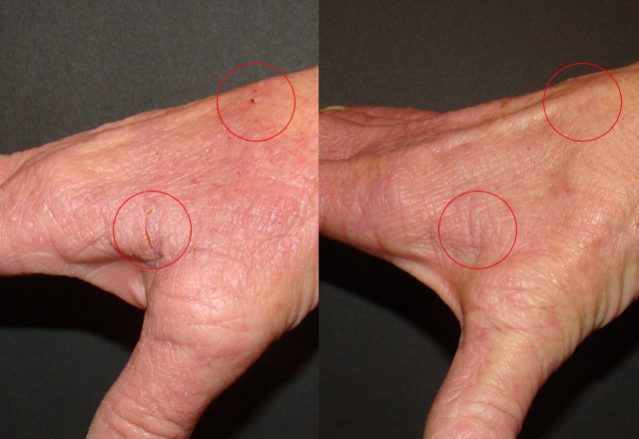 Before and after results – hand 6