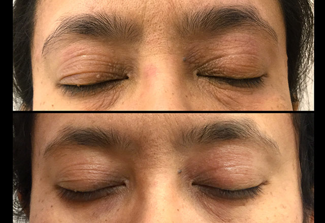 Treatment for Eyelid Dermatitis