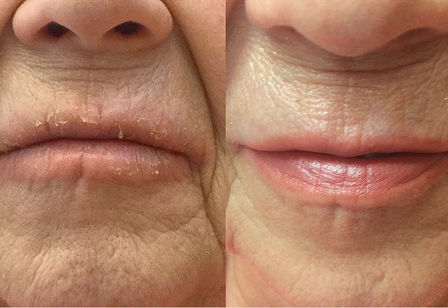 Before and After Photo – lips