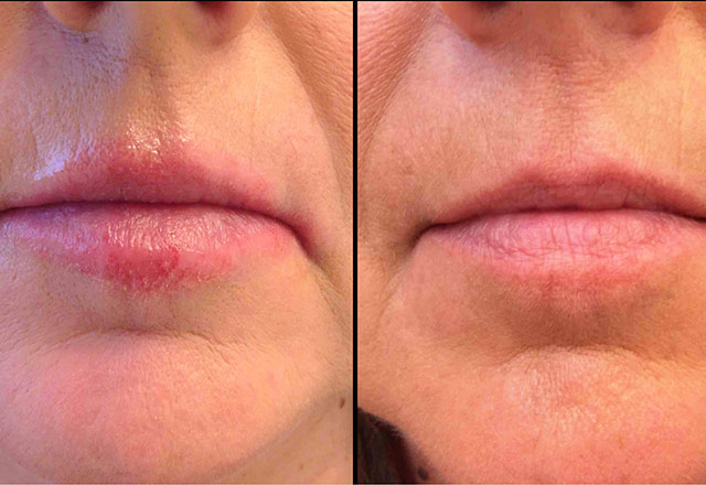 Before and After Photo – lips 2